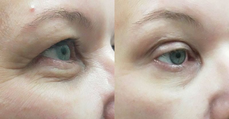Plexr eyelid lift treatment Melbourne before and after photos
