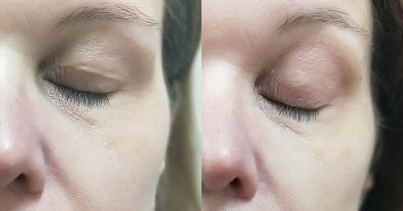 Plexr non surgical bleth eyelid tightening Melbourne before and after